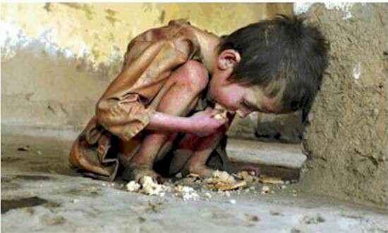 starving boy